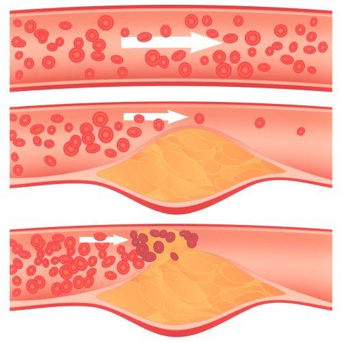 Krvni strdki v o?ilju in Zapper Zaper Zaperino frekven?na terapija
